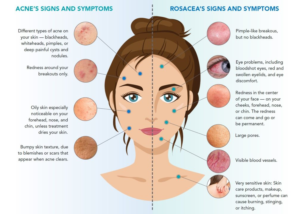 How To Tell If You Have Acne or Rosacea | Good Fun Health